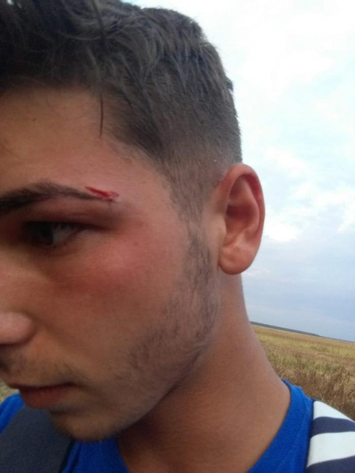 Un primar este acuzat că a lovit un jucător la un meci din Giurgiu!